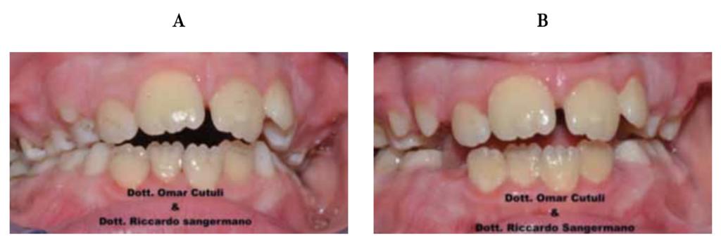 Black stain prima e dopo trattamento lattoferrina